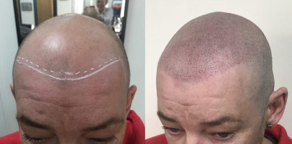scalp micropigmentation for hair loss at Anthony James Hair Salon in Halifax