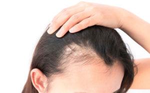 Hair Loss Covid-19, Anthony James Hair Salon in Halifax
