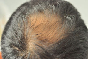 Scalp MicroPigmentation Hair Loss Solutions at Anthony James Hairdressers in Halifax